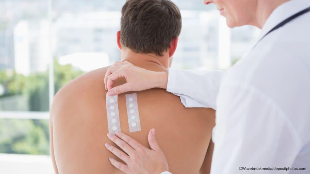 Allergien – Diagnostik – Patch-Test