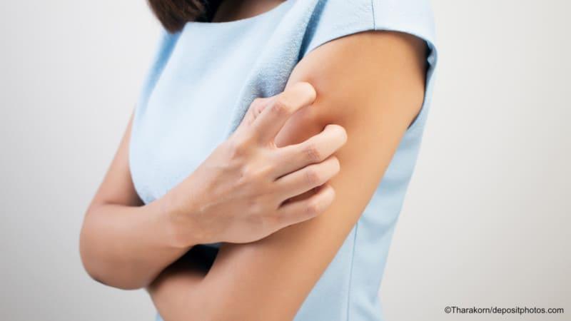 Dermatologie – Klassische Hauterkrankungen